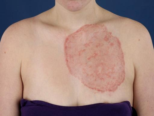 Как вылечить нарушение пигментации кожи