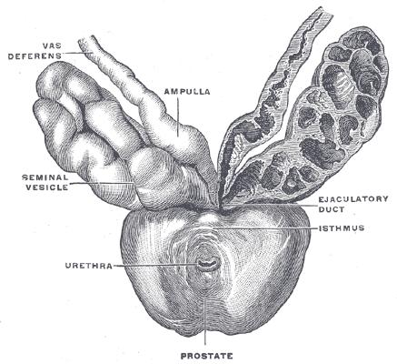 Что такое простата и рак предстательной железы?