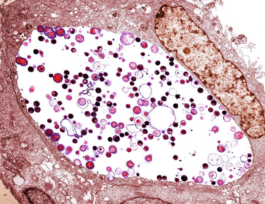 Венерическая лимфогранулема. Cимптомы, последствия, диагностика, лечение